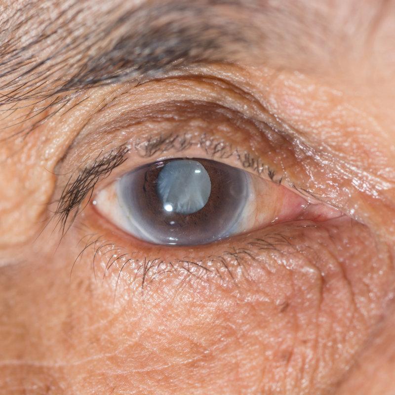 Cataratas: Enfermedad ocular muy habitual en Sevilla