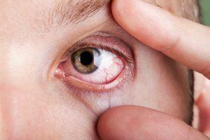ojo seco ó xeroftalmia
