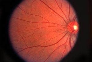 retina ojo optica en sevilla